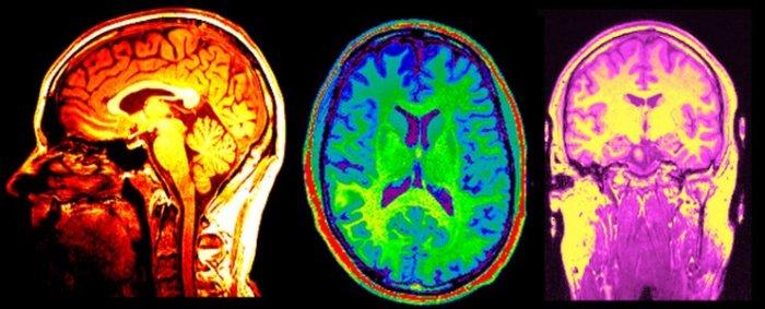 MRI_750_300_UXxOIz6.jpg.742x400_q85_crop